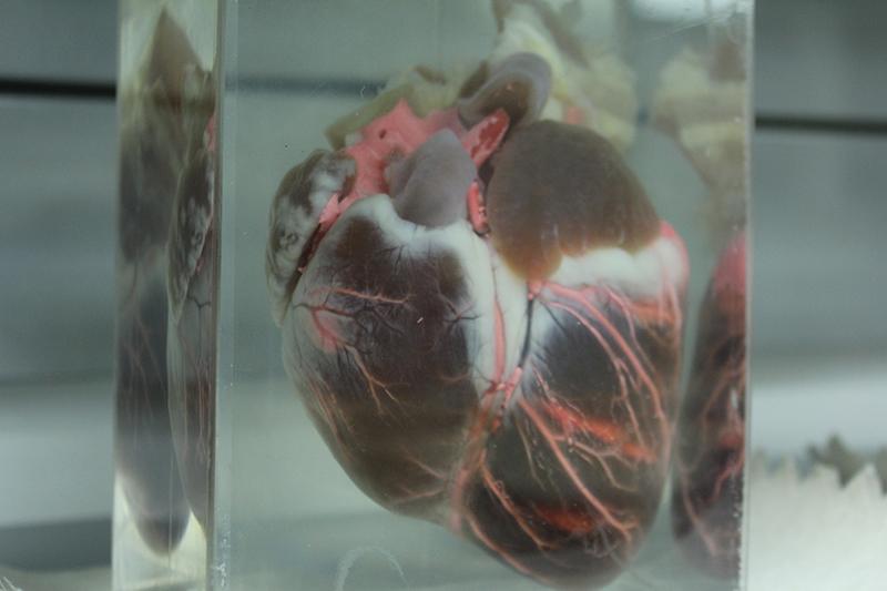Corazón carlos